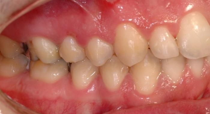 Ortodonzia - Dopo