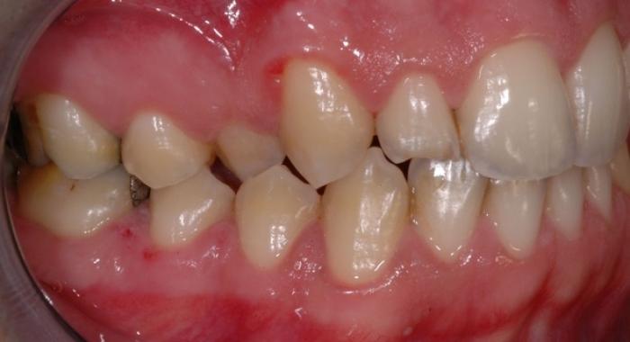 Ortodonzia - Prima